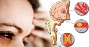โรคหลอดเลือดในสมอง