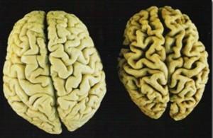 สมองโรคอัลไซเมอร์