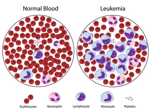leukemia2