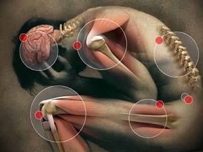 โรคข้อ-กระดูก-และกล้ามเนื้อ
