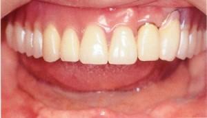 ฟันโยก