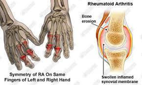 rheumatoid1