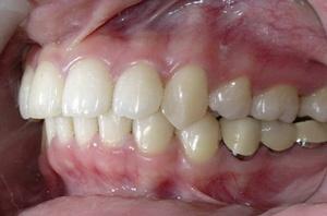 ฟันสบ
