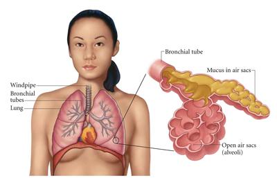 pneumonia3