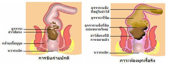 tongpug1