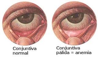 anemia1