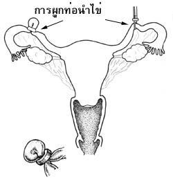 หมันหญิง1